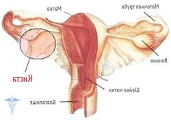 Кіста яєчніка, симптоми і лікування