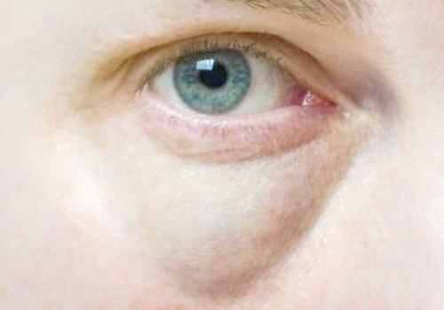 Способи позбавлення від набряків під очима
