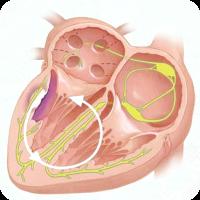 Тахікардія при вагітності